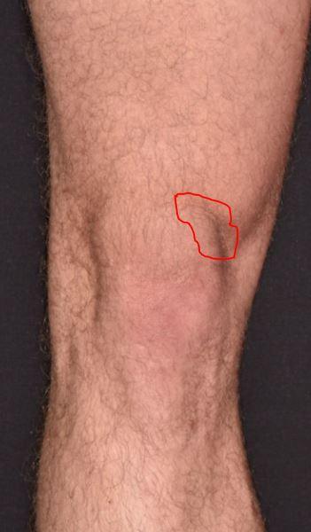 Kneproblem venstre kne.JPG