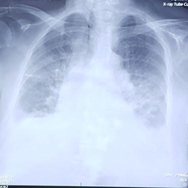Røntgenbilde%2009.06.18 (2).jpg